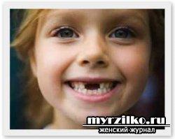 «Мама, у меня зуб шатается!»